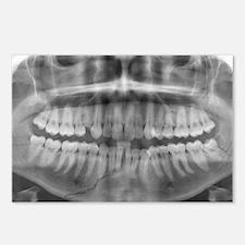 Broken jawbone, X-ray Postcards (Package of 8)
