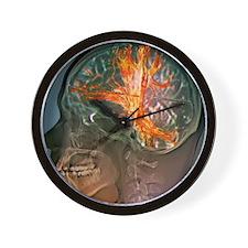 Brain cancer, MRI scan Wall Clock