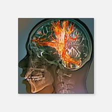 """Brain cancer, MRI scan Square Sticker 3"""" x 3"""""""