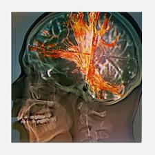 Brain cancer, MRI scan Tile Coaster