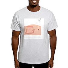 Colonoscopy, artwork T-Shirt