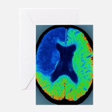 Cerebral stroke, CT scan Greeting Card