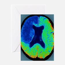 Cerebral stroke, CT scan Greeting Card