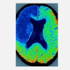 Cerebral stroke, CT scan Postcards (Package of 8)