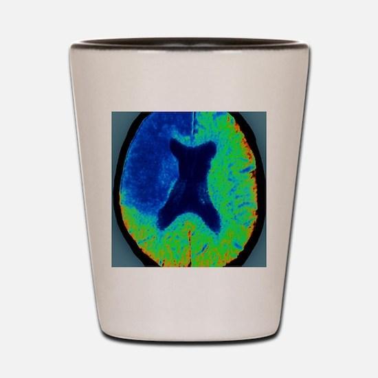 Cerebral stroke, CT scan Shot Glass