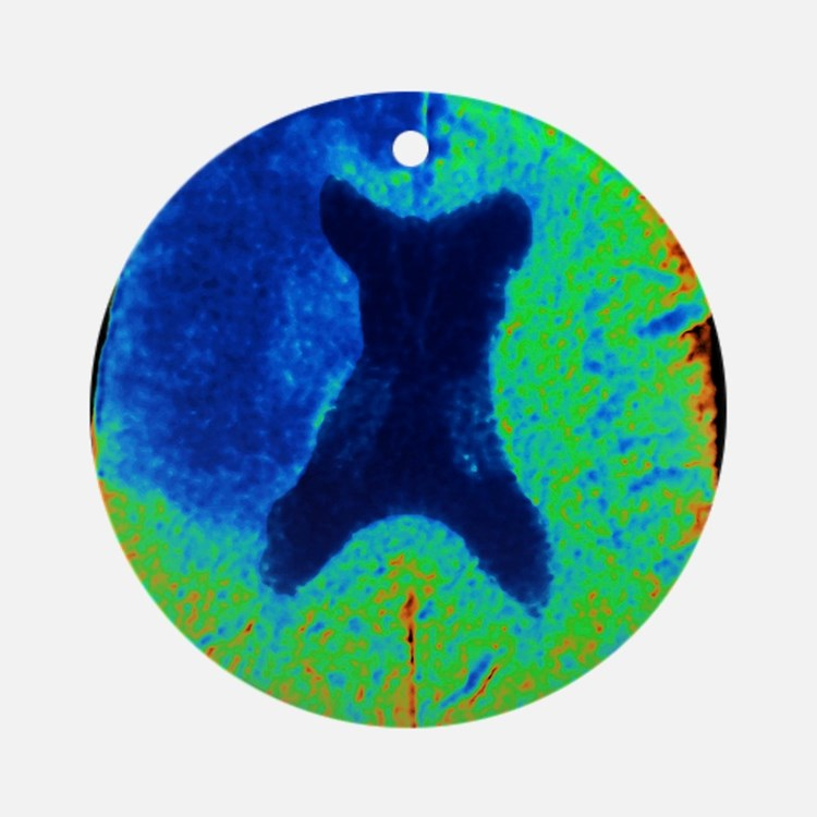 Cerebral stroke, CT scan Round Ornament
