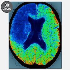 Cerebral stroke, CT scan Puzzle