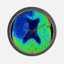Cerebral stroke, CT scan Wall Clock