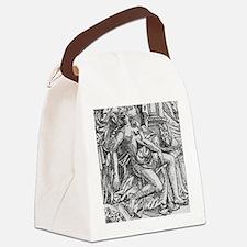 Caesarean birth, 17th c. illustra Canvas Lunch Bag