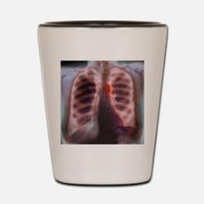 Aortic aneurysm, X-ray Shot Glass