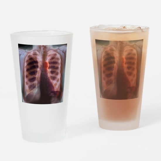 Aortic aneurysm, X-ray Drinking Glass