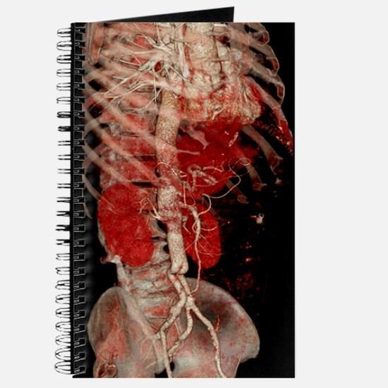 Aortic aneurysm CT scan Journal
