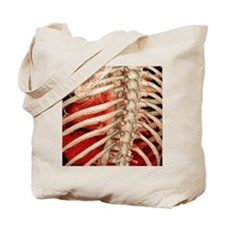 Aortic aneurysm CT scan Tote Bag