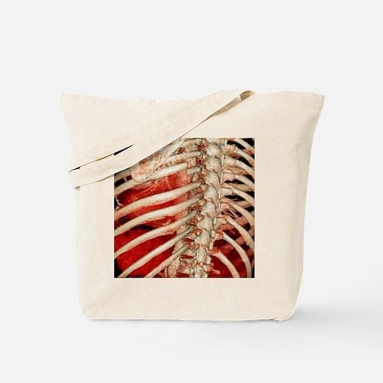 Aortic aneurysm CT scan Tote Bag