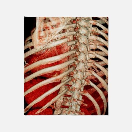 Aortic aneurysm CT scan Throw Blanket