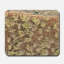 Brain surface, SEM Mousepad
