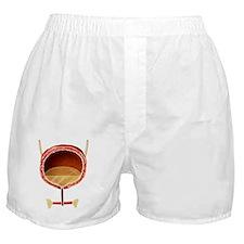 Bladder anatomy, artwork Boxer Shorts