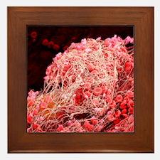 Blood clot, SEM Framed Tile