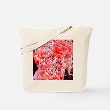 Blood clot, SEM Tote Bag