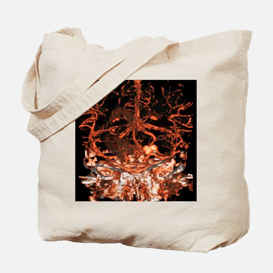 Berry aneurysm, angiogram Tote Bag
