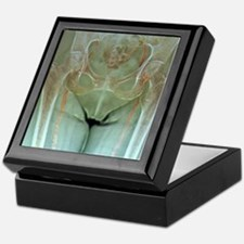 Atherosclerosis in femoral arteries X Keepsake Box