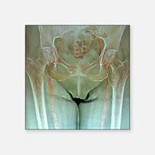 "Atherosclerosis in femoral  Square Sticker 3"" x 3"""