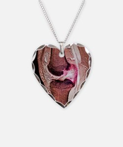 Anterior cruciate ligament te Necklace