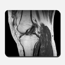 Anterior cruciate ligament tear, CT scan Mousepad