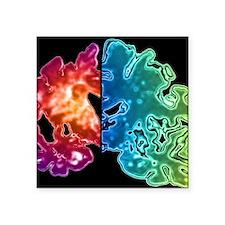 """Alzheimer's brain Square Sticker 3"""" x 3"""""""