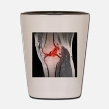 Anterior cruciate ligament tear, CT sca Shot Glass