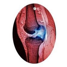 Anterior cruciate ligament tear, CT  Oval Ornament