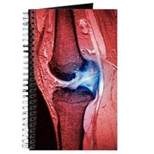 Anterior cruciate ligament tear, CT scan Journal