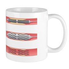 Angioplasty, artwork Mug