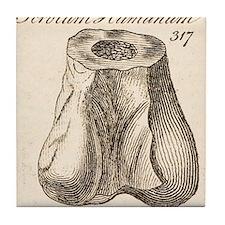 1763 Dinosaur bone misidentified scro Tile Coaster