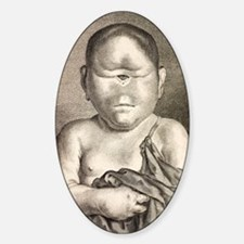 1777 Buffon Cyclopia congenital dis Sticker (Oval)
