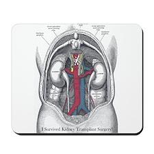 I Survived Kidney Transplant Mousepad
