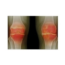 Arthritic knees, X-ray Rectangle Magnet