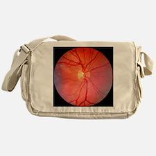 Normal retina of eye Messenger Bag