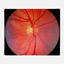 Normal retina of eye Throw Blanket
