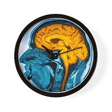 Normal brain, MRI scan Wall Clock