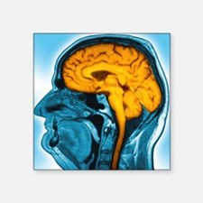 "Normal brain, MRI scan Square Sticker 3"" x 3"""