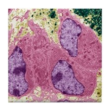 Osteoblasts, TEM Tile Coaster