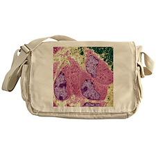 Osteoblasts, TEM Messenger Bag