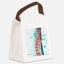 Spinal cord stroke, MRI scan Canvas Lunch Bag