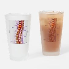 Spinal cord stroke, MRI scan Drinking Glass