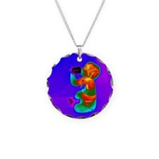 Thermogram of a baby Necklace
