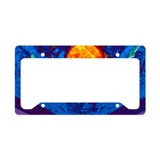 Uterine fibroid, MRI scan License Plate Holder