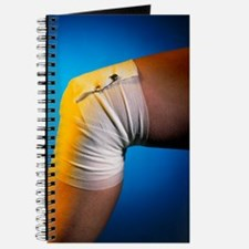 View of a bandaged knee Journal