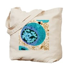 Thyroid cancer cell, TEM Tote Bag