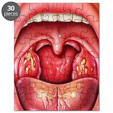 Tonsillitis Puzzle